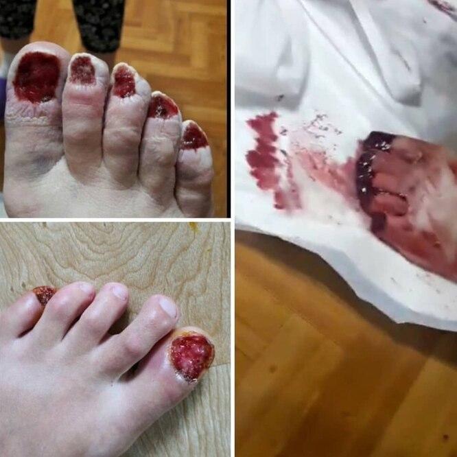 В Хабаровске судят женщину вырывавшую ногти своим клиентам