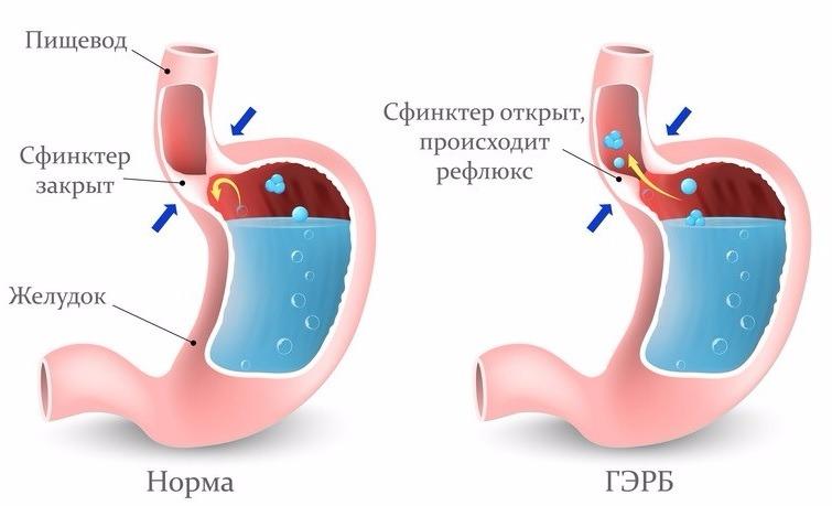 Гастроэзофагеальной рефлюксной болезни как лечить