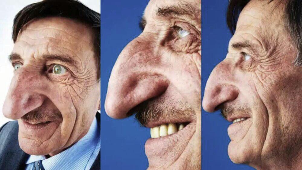 Картинка люди с большим носом