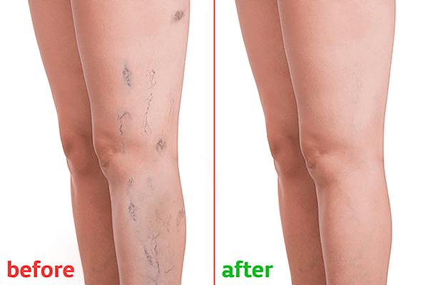 varicosera tratament consecințe laser de ce nu pot fi băteau în varicoză