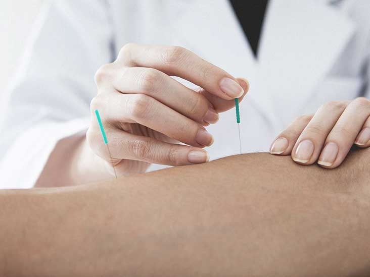 Do You Know The Benefits of Acupuncture Treatment?